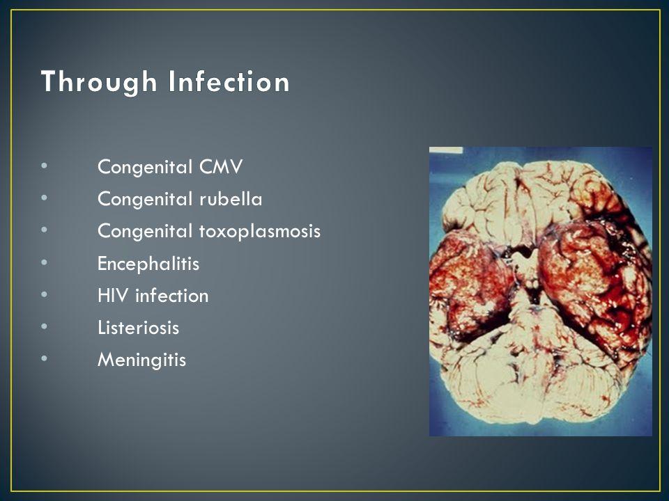 Congenital CMV Congenital rubella Congenital toxoplasmosis Encephalitis HIV infection Listeriosis Meningitis
