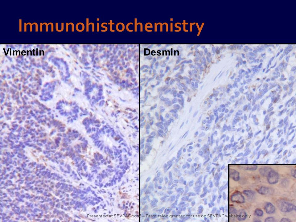 VimentinDesmin Presented at SEVPAC 2008 – Permission granted for use on SEVPAC website only