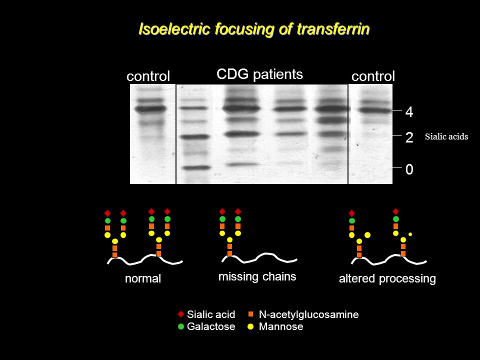 Isoelectric focusing of transferrin 4 2 0 control CDG patients Sialic acid Galactose N-acetylglucosamine Mannose normal missing chains altered processing Sialic acids