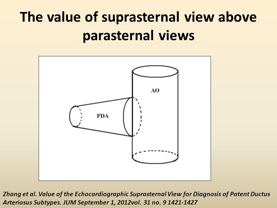 The value of suprasternal view above parasternal views Zhang et al. Value of the Echocardiographic Suprasternal View for Diagnosis of Patent Ductus Ar