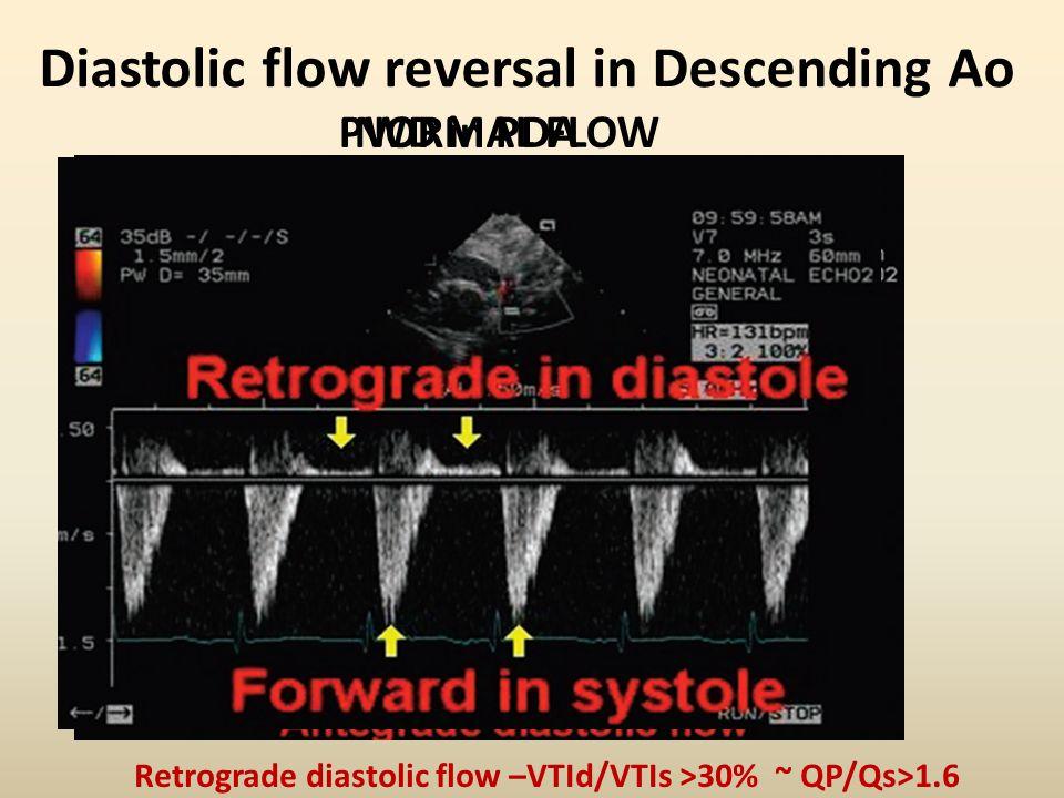 Diastolic flow reversal in Descending Ao NORMAL FLOWPWD in PDA Retrograde diastolic flow –VTId/VTIs >30% ~ QP/Qs>1.6