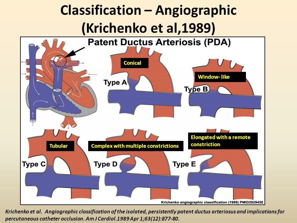 Why the PDA is often difficult to Echo-image? TTE??TEE??