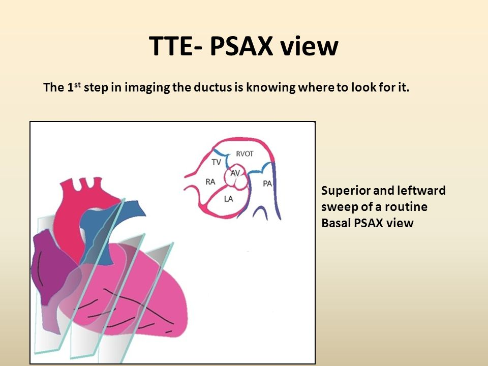 TTE- PSAX view Superior and leftward sweep of a routine Basal PSAX view The 1 st step in imaging the ductus is knowing where to look for it.