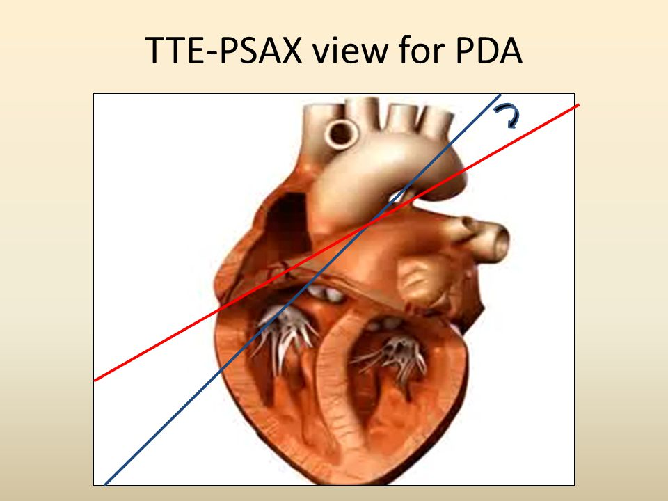 TTE-PSAX view for PDA