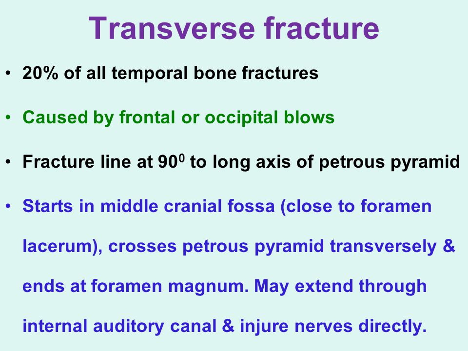 Transverse fracture 20% of all temporal bone fractures Caused by frontal or occipital blows Fracture line at 90 0 to long axis of petrous pyramid Star