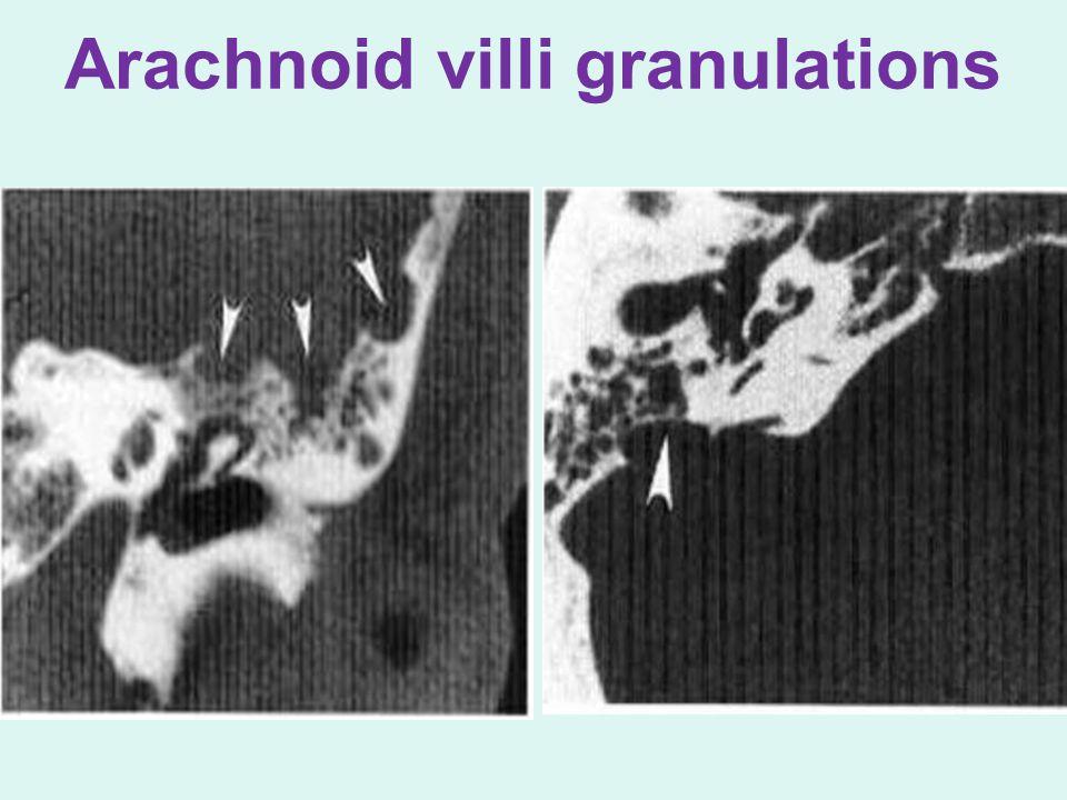 Arachnoid villi granulations