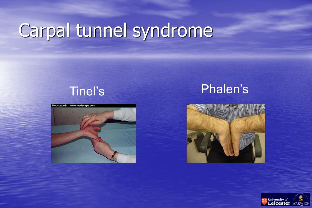 Carpal tunnel syndrome Tinel's Phalen's