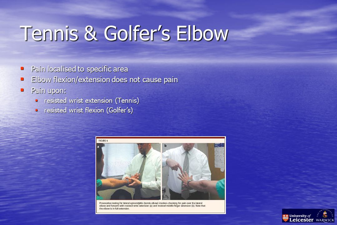 Tennis & Golfer's Elbow  Pain localised to specific area  Elbow flexion/extension does not cause pain  Pain upon:  resisted wrist extension (Tennis)  resisted wrist flexion (Golfer's)