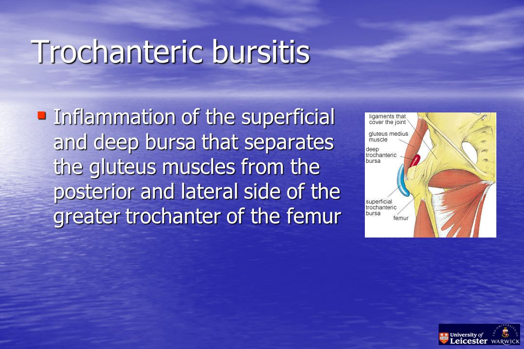 Trochanteric bursitis  Inflammation of the superficial and deep bursa that separates the gluteus muscles from the posterior and lateral side of the greater trochanter of the femur