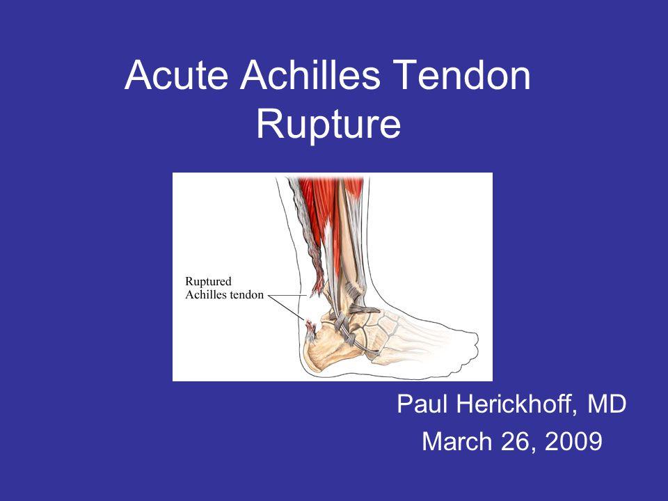 Acute Achilles Tendon Rupture Paul Herickhoff, MD March 26, 2009