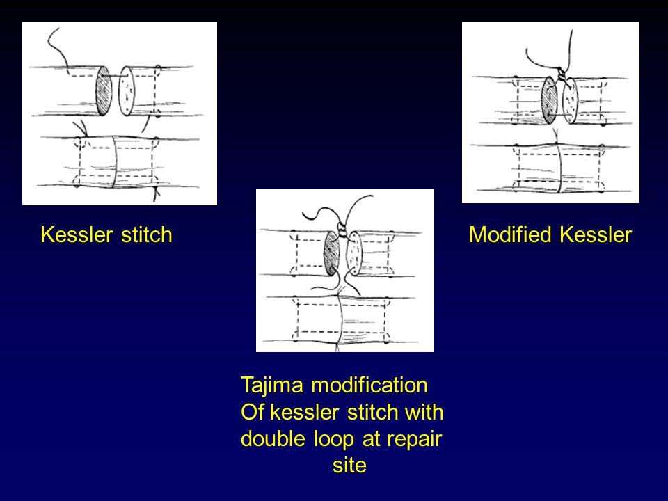 Kessler stitchModified Kessler Tajima modification Of kessler stitch with double loop at repair site