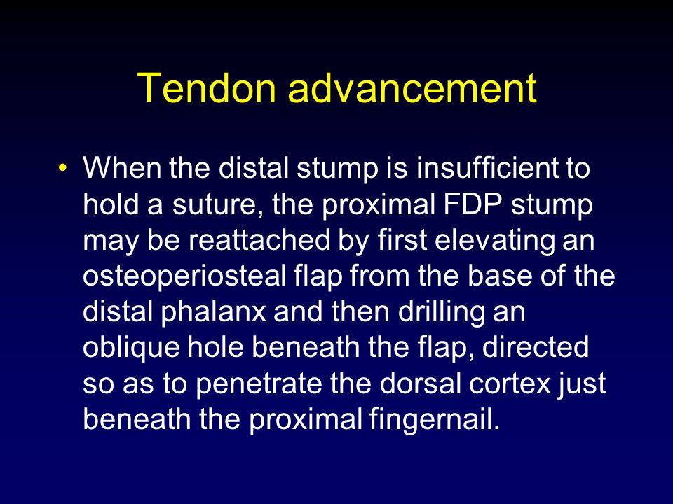 Tendon advancement When the distal stump is insufficient to hold a suture, the proximal FDP stump may be reattached by first elevating an osteoperiost