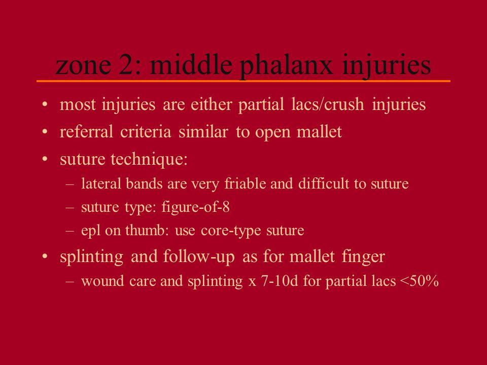 zone 2: middle phalanx injuries most injuries are either partial lacs/crush injuries referral criteria similar to open mallet suture technique: –later