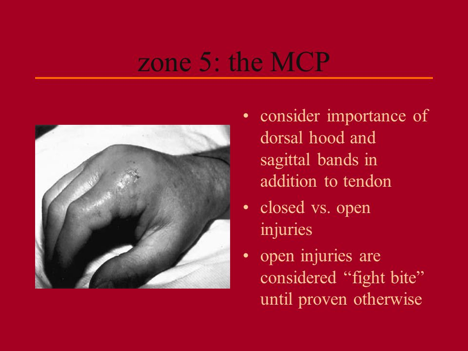 """zone 5: the MCP consider importance of dorsal hood and sagittal bands in addition to tendon closed vs. open injuries open injuries are considered """"fig"""