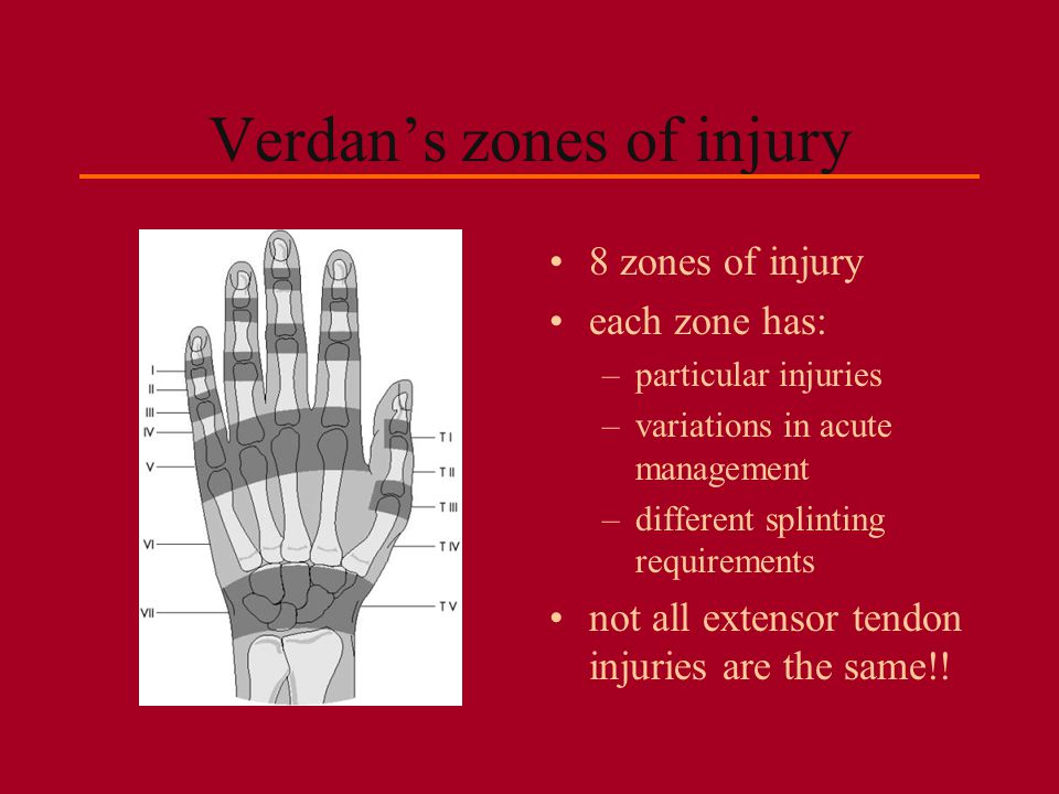 zone 5: the MCP consider importance of dorsal hood and sagittal bands in addition to tendon closed vs.