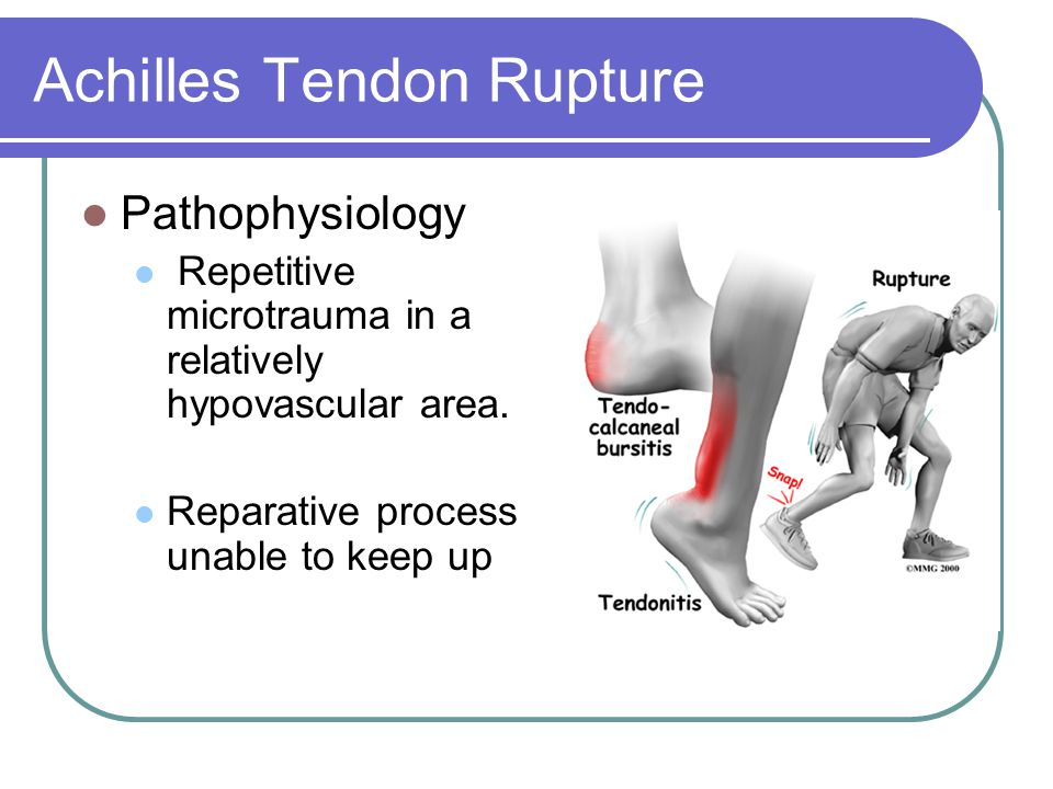 Achilles Tendon Rupture Pathophysiology Repetitive microtrauma in a relatively hypovascular area.
