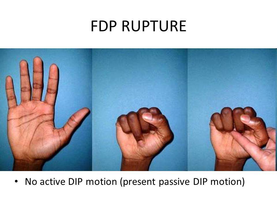 FDP RUPTURE No active DIP motion (present passive DIP motion)