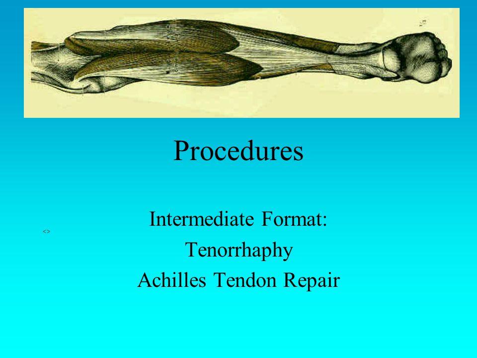Procedures Intermediate Format: Tenorrhaphy Achilles Tendon Repair <>