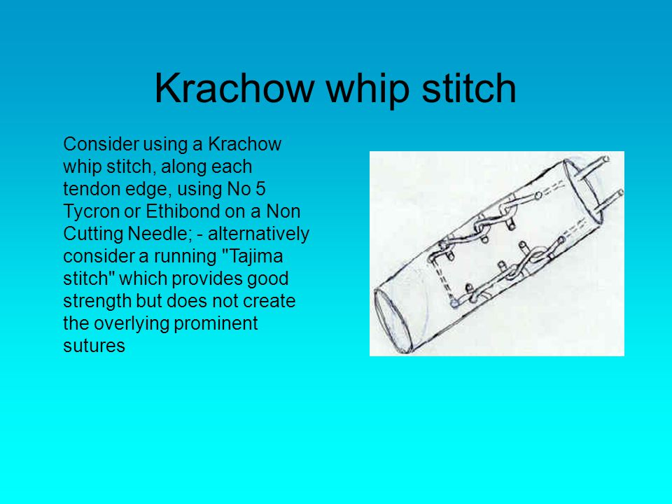 Krachow whip stitch Consider using a Krachow whip stitch, along each tendon edge, using No 5 Tycron or Ethibond on a Non Cutting Needle; - alternatively consider a running Tajima stitch which provides good strength but does not create the overlying prominent sutures