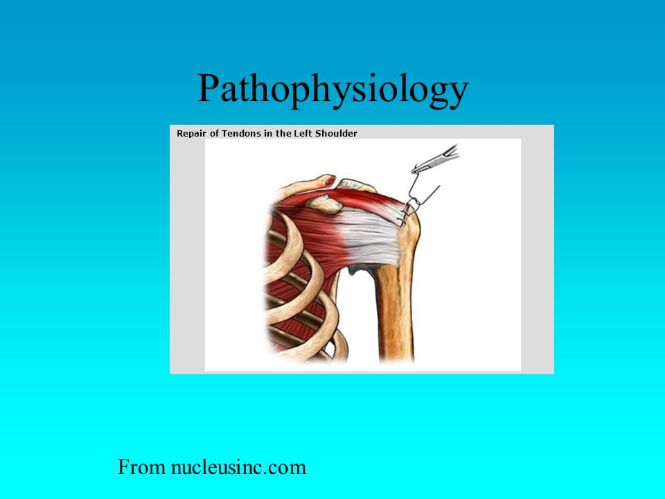 Pathophysiology Repair of Tendons in the Left Shoulder From nucleusinc.com