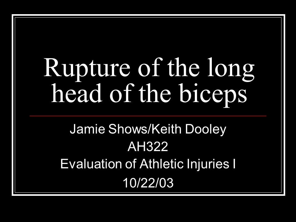 Rupture of the long head of the biceps Jamie Shows/Keith Dooley AH322 Evaluation of Athletic Injuries I 10/22/03