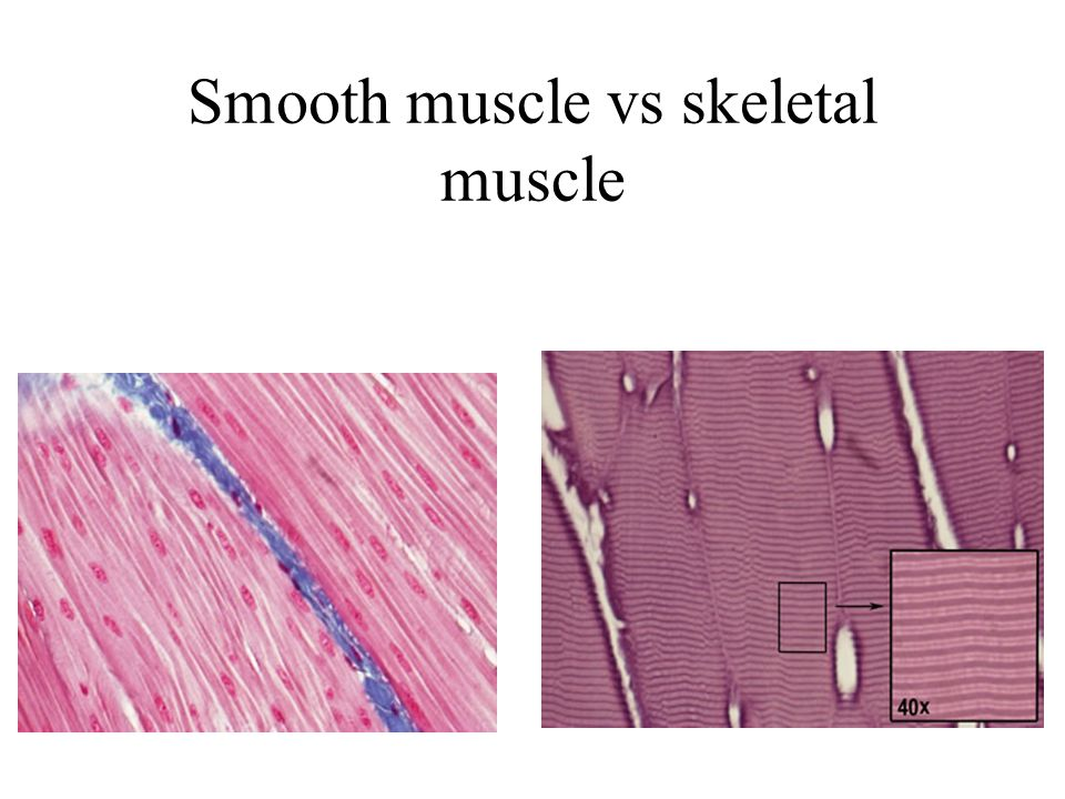 Smooth muscle vs skeletal muscle