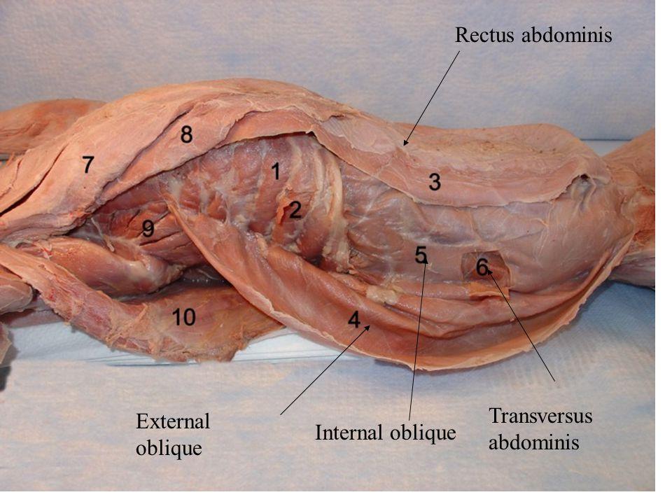 Rectus abdominis External oblique Internal oblique Transversus abdominis