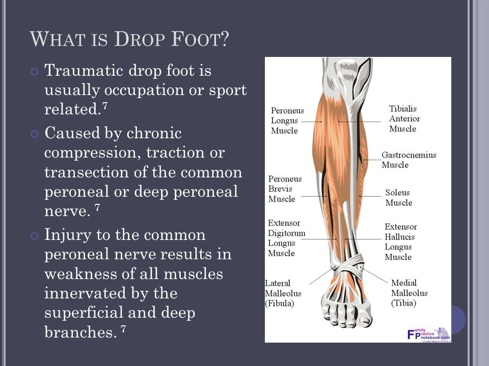 W HAT IS D ROP F OOT ? Traumatic drop foot is usually occupation or sport related. 7 Caused by chronic compression, traction or transection of the com