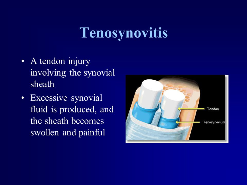 Tenosynovitis A tendon injury involving the synovial sheath Excessive synovial fluid is produced, and the sheath becomes swollen and painful