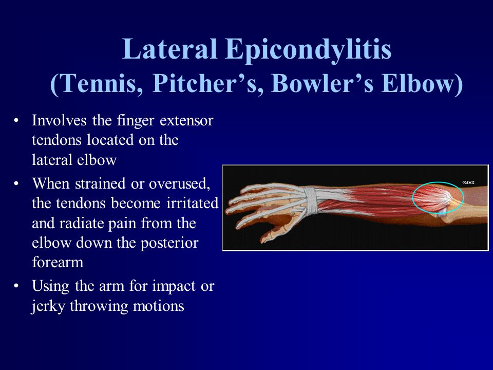 Lateral Epicondylitis (Tennis, Pitcher's, Bowler's Elbow) Involves the finger extensor tendons located on the lateral elbow When strained or overused,