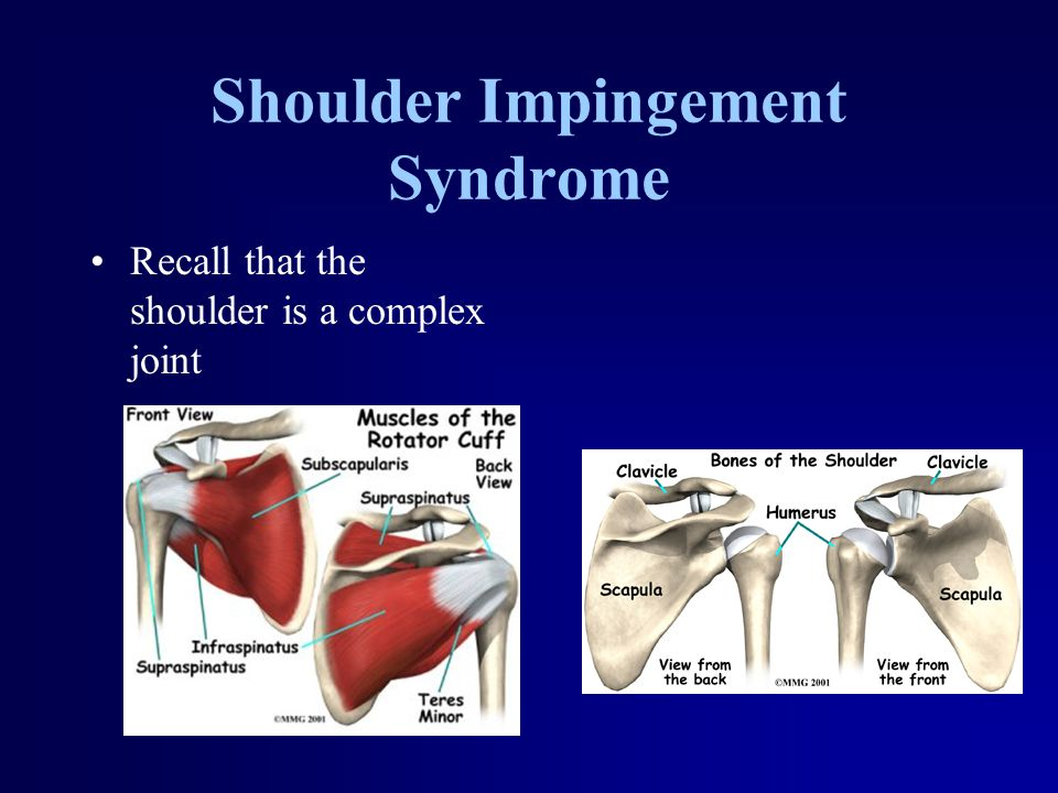 Shoulder Impingement Syndrome Recall that the shoulder is a complex joint