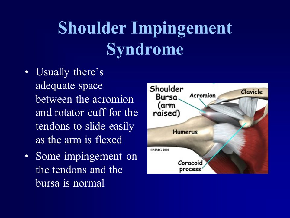 Shoulder Impingement Syndrome Usually there's adequate space between the acromion and rotator cuff for the tendons to slide easily as the arm is flexe