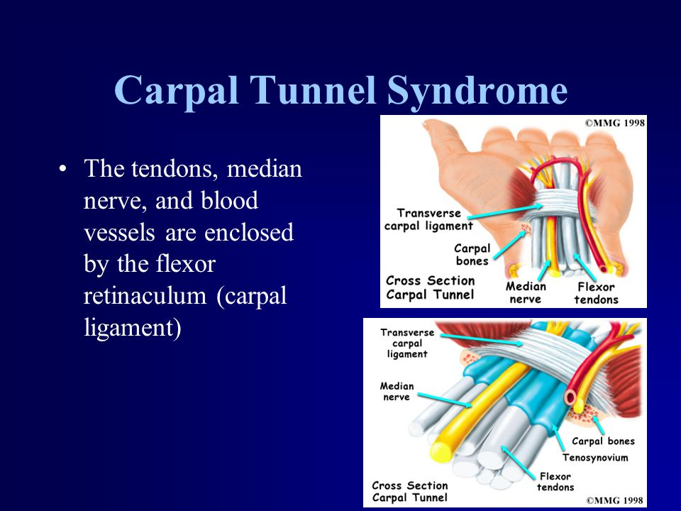 Carpal Tunnel Syndrome The tendons, median nerve, and blood vessels are enclosed by the flexor retinaculum (carpal ligament)