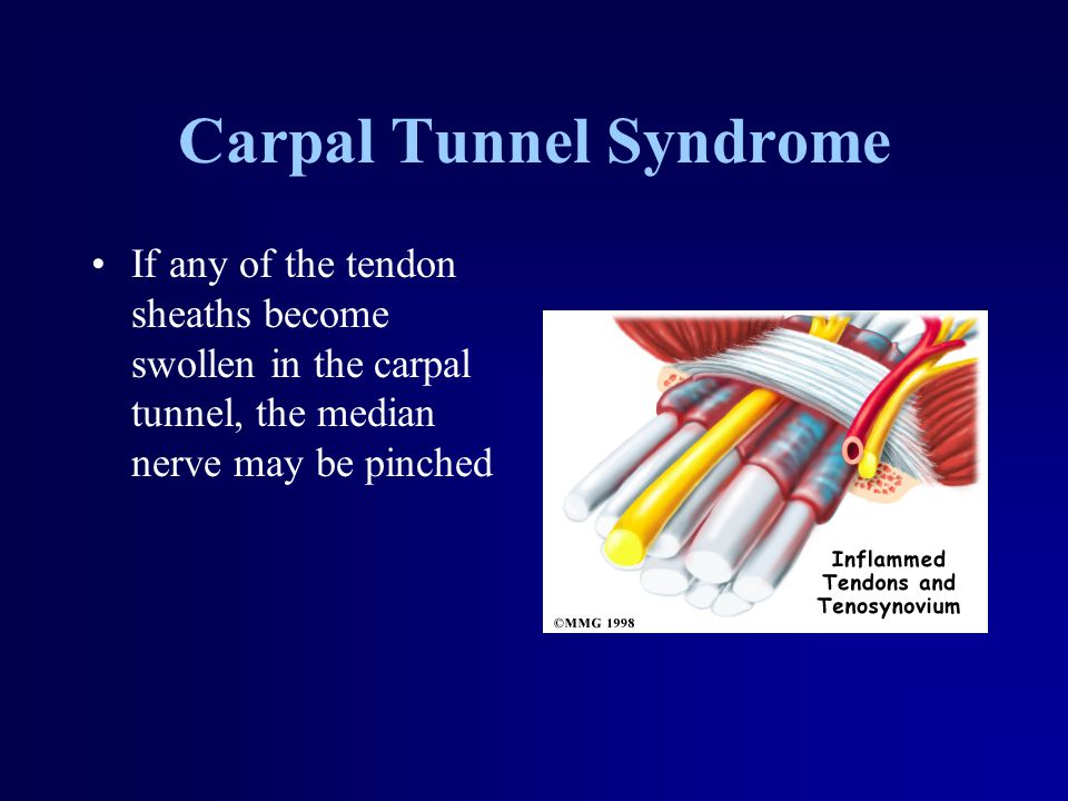 Carpal Tunnel Syndrome If any of the tendon sheaths become swollen in the carpal tunnel, the median nerve may be pinched