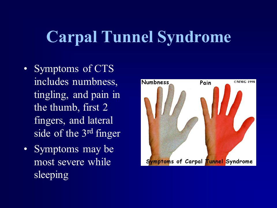 Carpal Tunnel Syndrome Symptoms of CTS includes numbness, tingling, and pain in the thumb, first 2 fingers, and lateral side of the 3 rd finger Symptoms may be most severe while sleeping