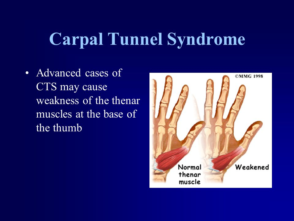 Carpal Tunnel Syndrome Advanced cases of CTS may cause weakness of the thenar muscles at the base of the thumb