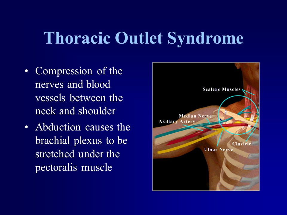 Thoracic Outlet Syndrome Compression of the nerves and blood vessels between the neck and shoulder Abduction causes the brachial plexus to be stretche