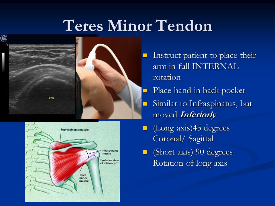 Teres Minor Tendon Instruct patient to place their arm in full INTERNAL rotation Place hand in back pocket Similar to Infraspinatus, but moved Inferio