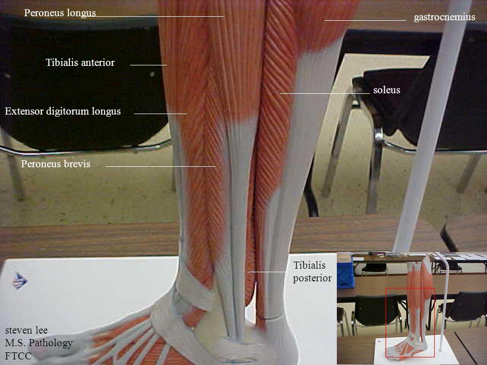 Tibialis anterior Extensor digitorum longus Peroneus longus Peroneus brevis gastrocnemius soleus Tibialis posterior steven lee M.S.