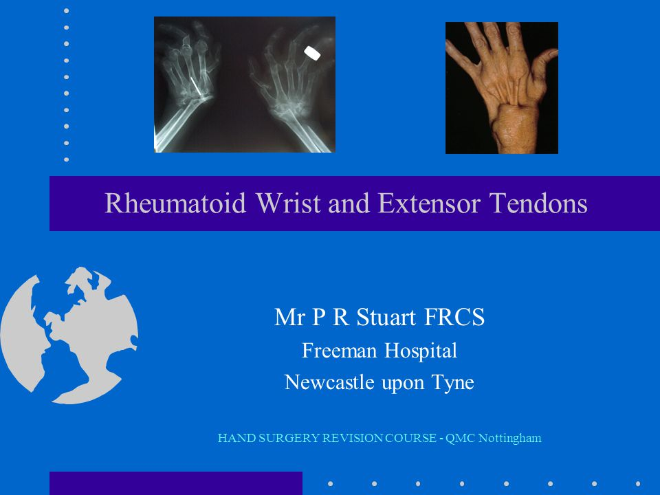 Extensor Tendons anatomy pathology –tenosynovitis caput ulnae clinical presentation