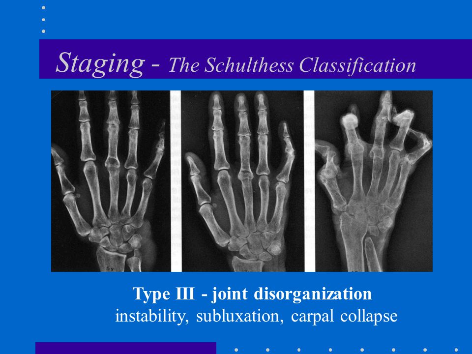 Staging - The Schulthess Classification Type III - joint disorganization instability, subluxation, carpal collapse
