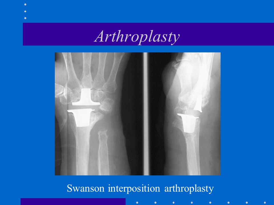 Arthroplasty Swanson interposition arthroplasty
