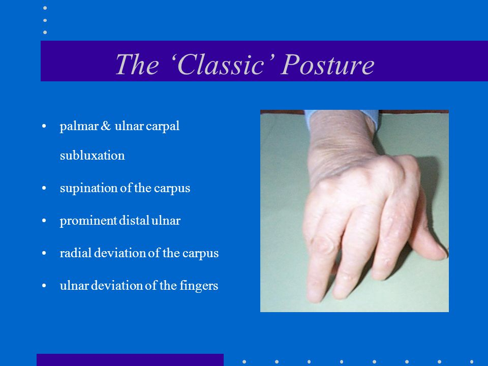 The 'Classic' Posture palmar & ulnar carpal subluxation supination of the carpus prominent distal ulnar radial deviation of the carpus ulnar deviation of the fingers