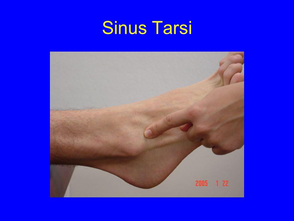 Sinus Tarsi