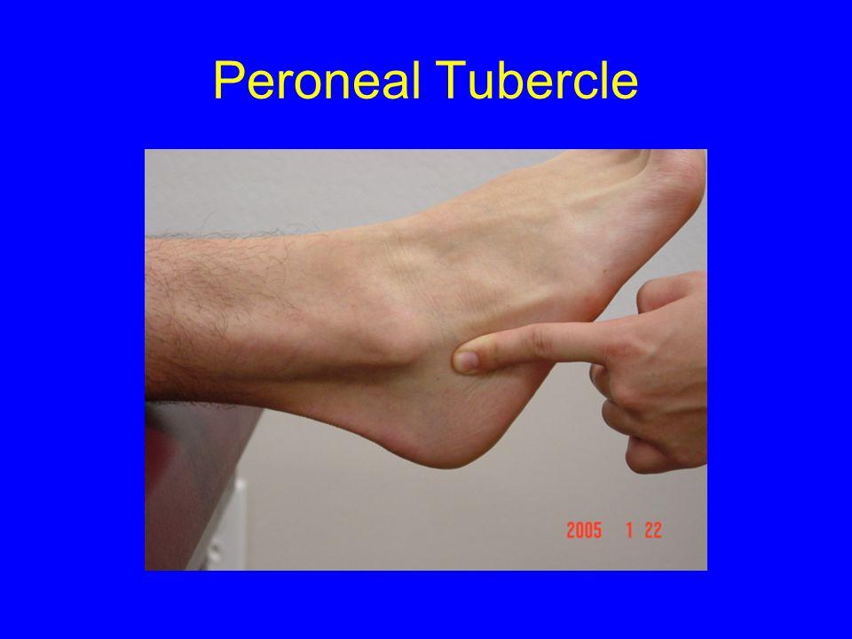 Peroneal Tubercle