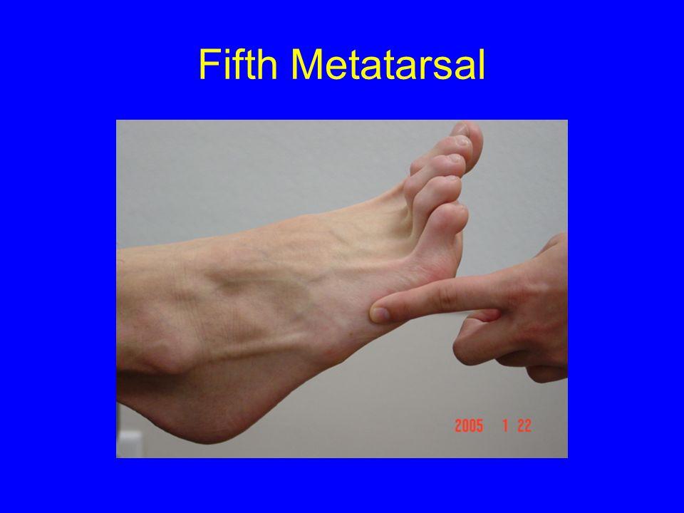 Fifth Metatarsal