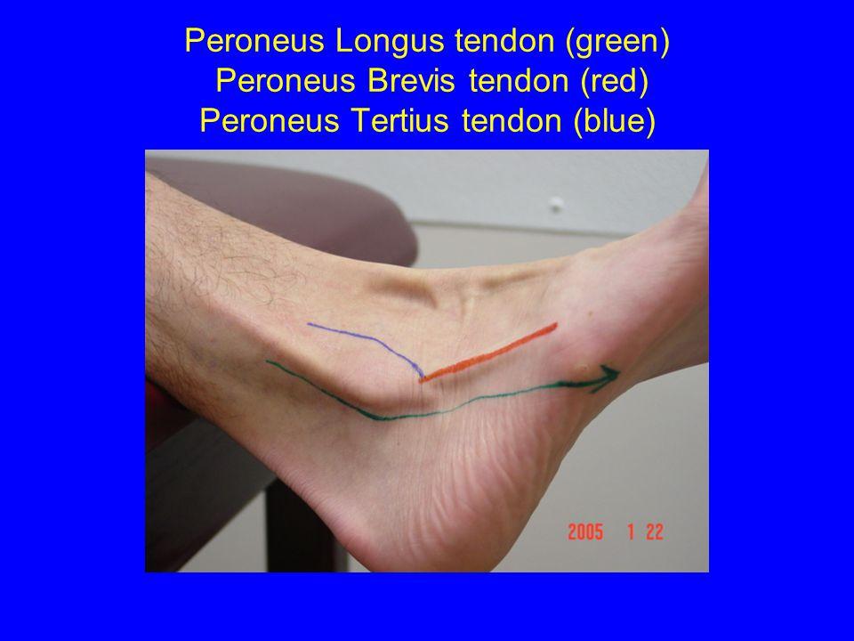 Peroneus Longus tendon (green) Peroneus Brevis tendon (red) Peroneus Tertius tendon (blue)