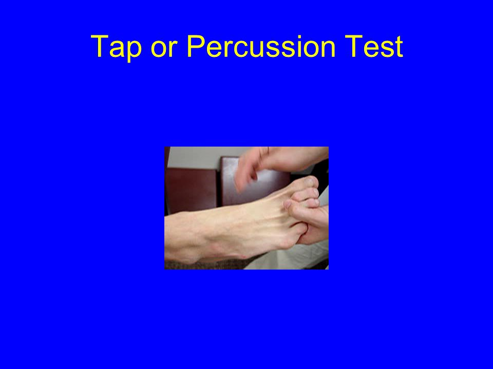 Tap or Percussion Test