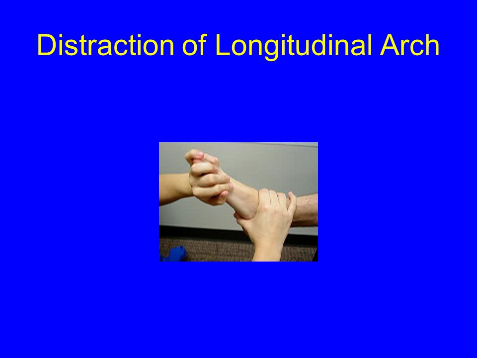 Distraction of Longitudinal Arch