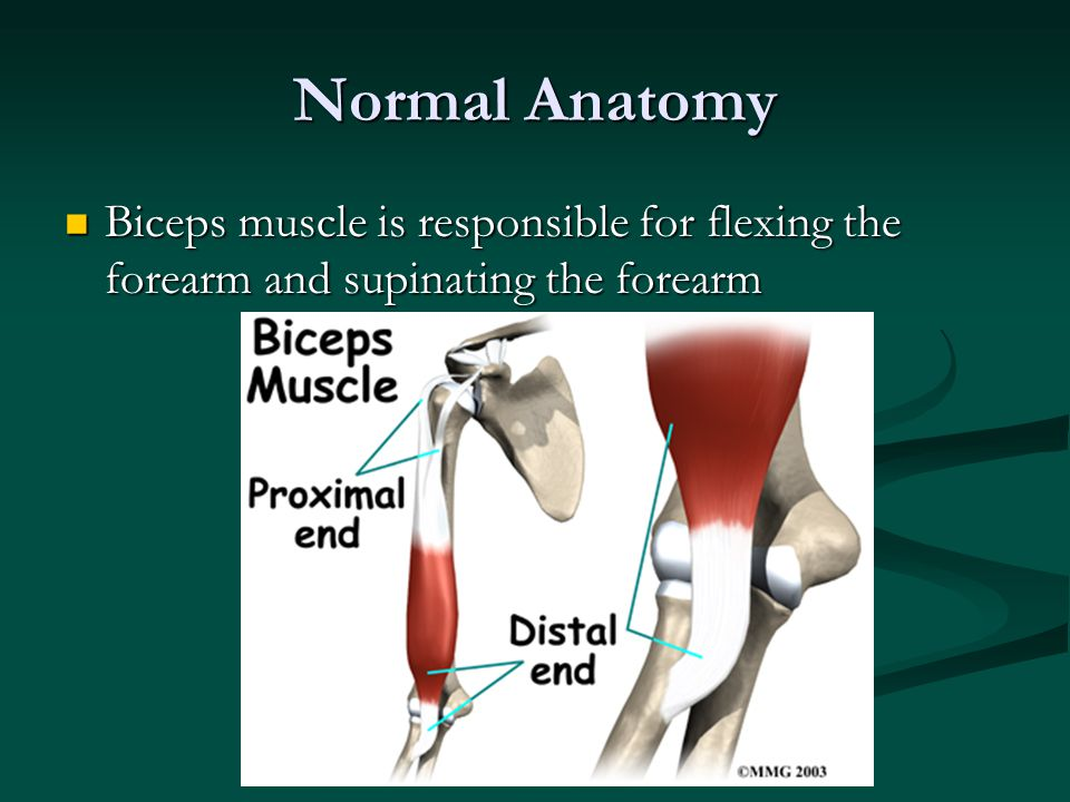Normal Anatomy Biceps muscle is responsible for flexing the forearm and supinating the forearm Biceps muscle is responsible for flexing the forearm and supinating the forearm